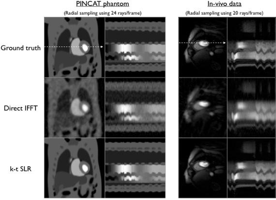 Matlab codes for k-t SLR | Computational Biomedical Imaging