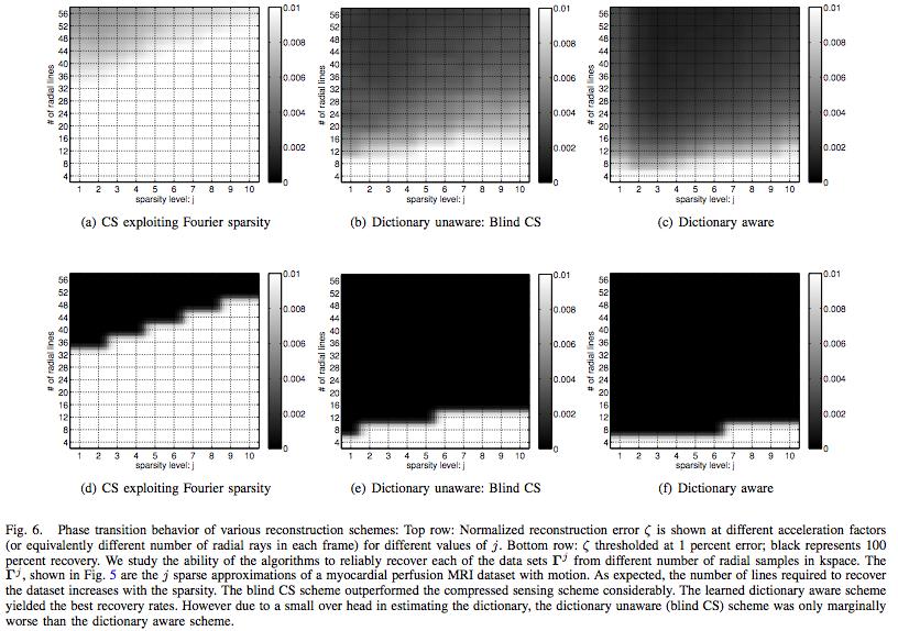 MATLAB codes for Blind compressed sensing (BCS) dynamic MRI